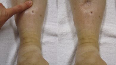 Photo of EDEMA