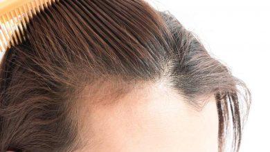 Photo of Perdita di capelli: cause e rimedi naturali per l'alopecia